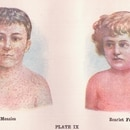 Measles and scarlet fever in a medical textbook. (Sue Clark / Flickr)