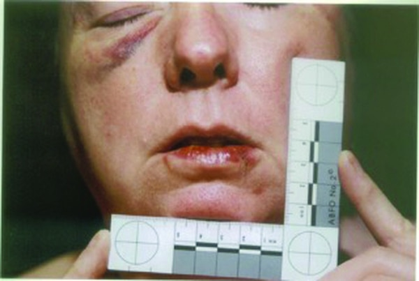 The Bruises: Police photographed Susan's injuries two days after the attack.